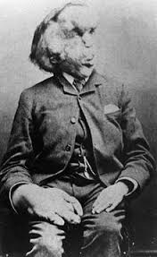 the elephant man. Beautiful The Joseph Merrick Carte De Visite Photo C 1889jpg On The Elephant Man