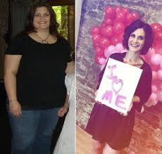 Romeoville mom happy with her weight loss surgery | The Herald-News