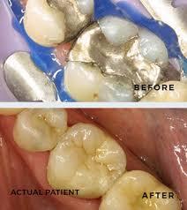 dental onlay inlay onlay restoration kittanning restorative dentist voller