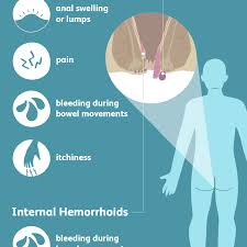 Hemorrhoid Size Chart Hemorrhoids Signs Symptoms And Complications