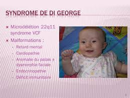 """Résultat de recherche d'images pour """"syndrome de di georges"""""""