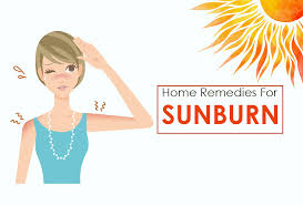 Image result for Sunburn Home Remedies