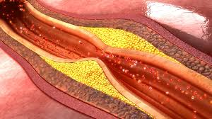 unregulated artery cell growth may