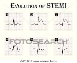 Clip Art Of Ecg Of Evolution Step By Step Of Stemi St