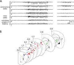 swds are initiated within the somatosensory cortex a simultaneous recordings in freely moving gaers of lfps from the somatosensory and motor