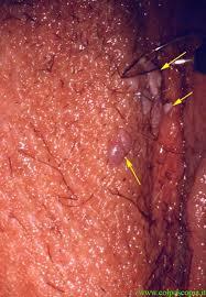vulvar lesions With adjacent normal tissue Immunocompromised