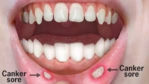 canker sores of the lips and throat