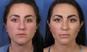 permalip surgisil lip implant enhancement