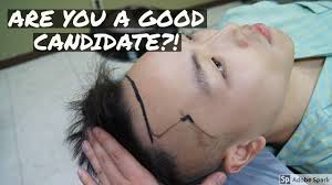 Why Would You Be A Good Candidate 5 Signs Youre A Good Hair Transplant Candidate Youtube