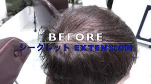 薄毛 目立たない 髪型頭頂部と前髪 薄く おでこ広い薄毛が気になる