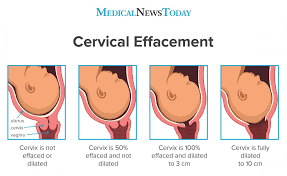 Birth Dilation Chart What To Know About Cervical Effacement Measurements And Diagram