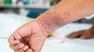 What Is Eczema or Atopic Dermatitis? | Everyday Health