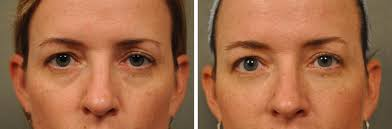 dermal fillers improve the appearance of undereye bags