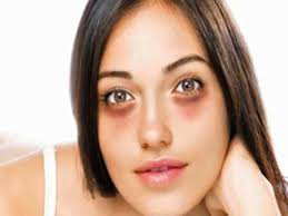 Image result for dark circles