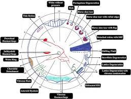 Fundus Chart Fundus Drawing Optometry Eye Retina Eye Facts