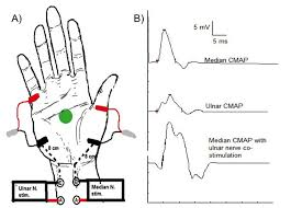 an and ulnar motor nerve conduction stus recording abductor scientific diagram
