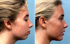 Chin Implant Size Chart Infopidia Infopidia On Pinterest