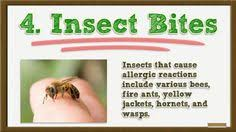61 best Hives Treatment images on Pinterest | Hives causes, The Cure ...