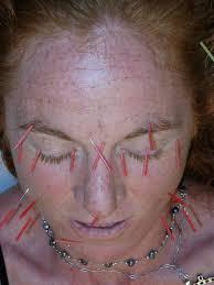 Facial Rejuvenation Cosmetic Acupuncture Points Chart Facial Rejuvenation Cosmetic Acupuncture Luvlight