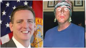Blackface Photos State Of After Secretary Florida's Resigns Surfaces