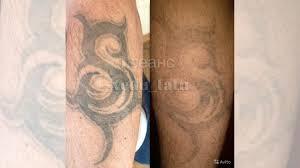 лазерное удаление татуировок и татуажа пилинг