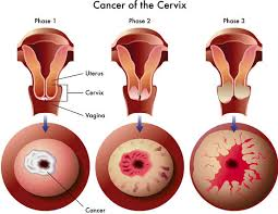 Cervical Cancer in Stages