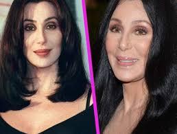 The wondrous world of sonny & cher; Cher Chirurgie Cher Et La Chirurgie Esthetique Stars Les Rates De La Chirurgie Esthetique