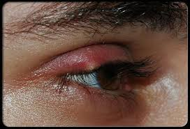 recognize these mon eye problems