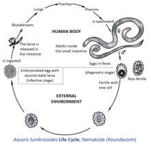 Ascariasis Roundworms Ascaris Lumbricoides Wikipedia
