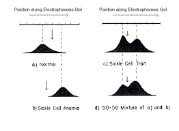 The Molecular Biology Of Sickle Cell Anemia