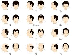 Male Or Female Pattern Baldness Treatments Gorgeous Hair Loss General Info Ndcmanado