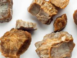 The Kidney Stone Diet Five Foods To Prevent Them
