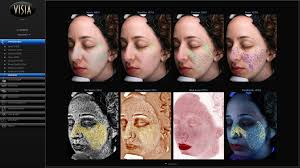 Wrinkles Sun Damage Acne Scars This Machine Revealed All