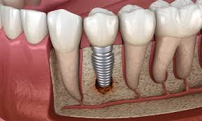 single tooth implant cost dental