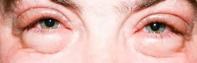 how to get rid of puffy red swollen eyes from crying