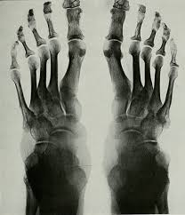 Ancestry Toe Chart Foot Shape Ancestry Everything You Need To Know Genealogybank