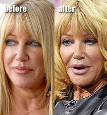 some of these people now look like muppets celebrity plastic surgery before after