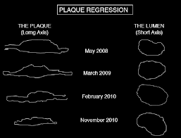 atheroscl plaque regression and