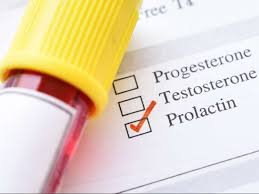 Prolactin Level Test High Levels Low Levels And When To