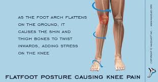 Flat Footed How Flat Feet Can Cause Knee Pain Mass4d Insoles And Foot Orthotics