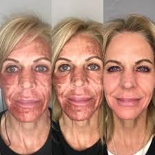 Laser Peels Skin Resurfacing Salt Lake City Ut 801 747 2273