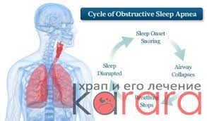 Синдром обструктивного апноэ сна реферат Храп и его лечение  Синдром обструктивного апноэ сна реферат фото 81