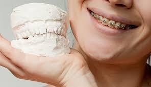 Correcting An Over Or Underbite Ismile Orthodontics