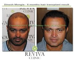 hair transplant in chandigarh india