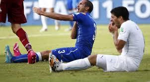 Insiden Antar Uruguay vs Italia , Suarez Menunjukan Gigi Tajamnya