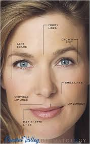 injectables fillers coastal valley