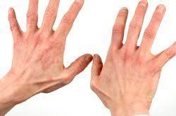 Imagini pentru psoriazis