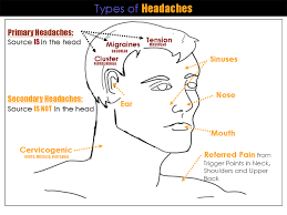Cluster Headache Location Chart Headache Chart Tension Headache Causes Headache Location