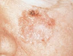 Image result for squamous cell carcinoma skin face