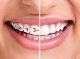 orthodontics can cut your gum disease